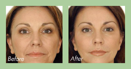 Dento-facial aesthetics before and after photo v1